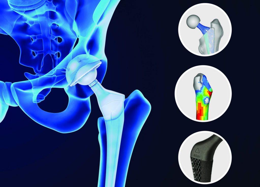 Die Forschung und Entwicklung in der Medizintechnik nutzt vermehrt die Simulation